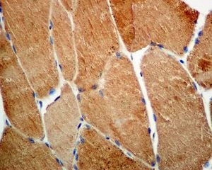 Immunohistochemistry (Formalin/PFA-fixed paraffin-embedded sections) - Anti-SOD2/MnSOD (acetyl K68) antibody [EPVANR2] - BSA and Azide free (ab218529)