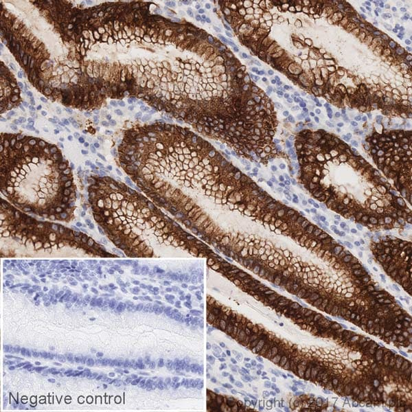 Immunohistochemistry (Formalin/PFA-fixed paraffin-embedded sections) - HRP Anti-Mucin 5AC antibody [EPR16904] (ab218713)