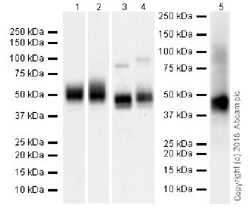 Western blot - Anti-CD47 antibody [EPR21794] (ab218810)