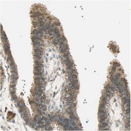 Immunohistochemistry (Formalin/PFA-fixed paraffin-embedded sections) - Anti-Keap1 antibody (ab218815)