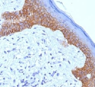 Immunohistochemistry (Formalin/PFA-fixed paraffin-embedded sections) - Anti-Desmoglein 3/PVA antibody [5G11] - BSA and Azide free (ab218851)