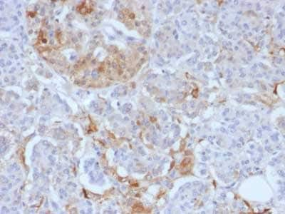 Immunohistochemistry (Formalin/PFA-fixed paraffin-embedded sections) - Anti-Ferritin Light Chain antibody [FTL/1388] - BSA and Azide free (ab218867)