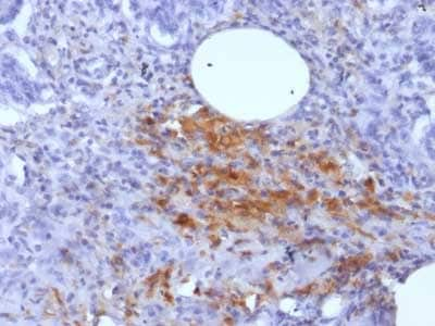 Immunohistochemistry (Formalin/PFA-fixed paraffin-embedded sections) - Anti-Ferritin Light Chain antibody [FTL/1389] - BSA and Azide free (ab218868)