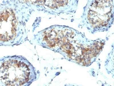 Immunohistochemistry (Formalin/PFA-fixed paraffin-embedded sections) - Anti-Interferon gamma antibody [IFNG/466] - BSA and Azide free (ab218890)