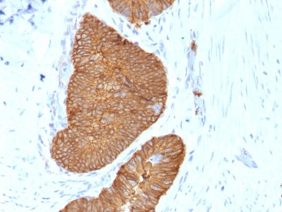 Immunohistochemistry (Formalin/PFA-fixed paraffin-embedded sections) - Anti-EpCAM antibody [EGP40/1384] - BSA and Azide free (ab218910)