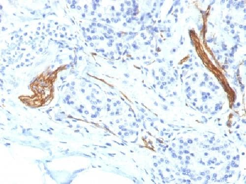 Immunohistochemistry (Formalin/PFA-fixed paraffin-embedded sections) - Anti-NCAM antibody [NCAM1/1496] - BSA and Azide free (ab218925)