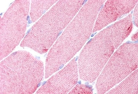 Immunohistochemistry (Formalin/PFA-fixed paraffin-embedded sections) - Anti-Alpha Skeletal Muscle Actin antibody [3B3] - N-terminal (ab218975)