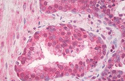 Immunohistochemistry (Formalin/PFA-fixed paraffin-embedded sections) - Anti-TLR4/MD2 Complex antibody (ab218987)