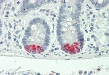 Immunohistochemistry (Formalin/PFA-fixed paraffin-embedded sections) - Anti-Trypsin antibody (ab219060)