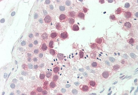 Immunohistochemistry (Formalin/PFA-fixed paraffin-embedded sections) - Anti-TTK/Mps1 antibody [3G7] (ab219068)