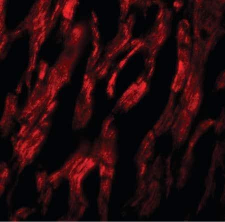 Immunocytochemistry/ Immunofluorescence - Anti-ATG9A antibody - C-terminal (ab219154)