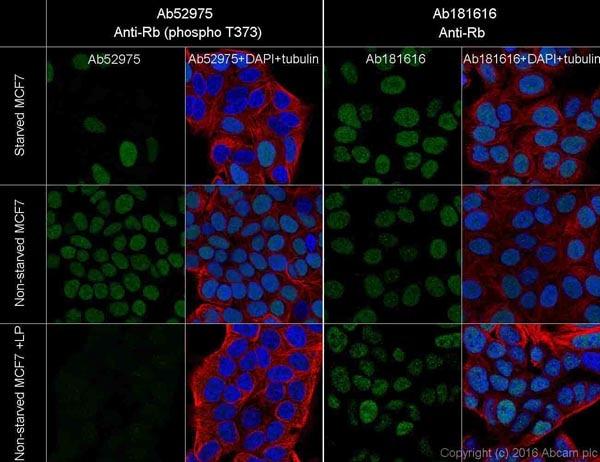 Immunocytochemistry/ Immunofluorescence - Anti-Rb (phospho T373) antibody [EP821Y] - BSA and Azide free (ab219158)