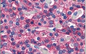 Immunohistochemistry (Formalin/PFA-fixed paraffin-embedded sections) - Anti-CaSR antibody - N-terminal (ab219182)