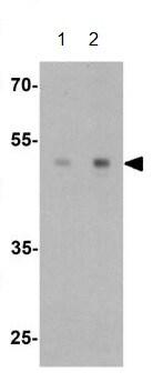 Western blot - Anti-ULK3 antibody (ab219264)