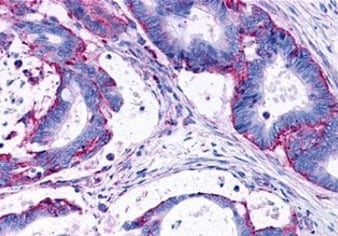 Immunohistochemistry (Formalin/PFA-fixed paraffin-embedded sections) - Anti-LPA-3 antibody (ab219267)