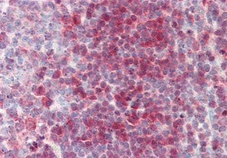 Immunohistochemistry (Formalin/PFA-fixed paraffin-embedded sections) - Anti-Nucleoside phosphorylase antibody (ab219269)