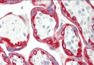 Immunohistochemistry (Formalin/PFA-fixed paraffin-embedded sections) - Anti-Cytokeratin 18 antibody (ab219271)