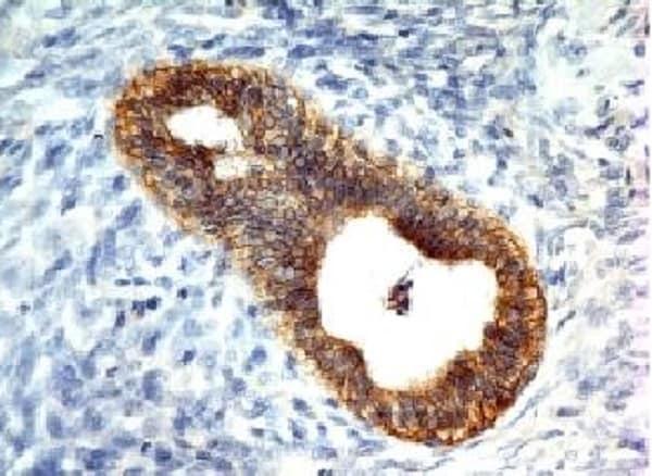 Immunohistochemistry (Formalin/PFA-fixed paraffin-embedded sections) - Anti-E Cadherin antibody [CDH1/1525] (ab219332)