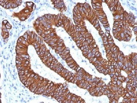 Immunohistochemistry (Formalin/PFA-fixed paraffin-embedded sections) - Anti-Cytokeratin 8+18 antibody [KRT8.18/1346] (ab219335)