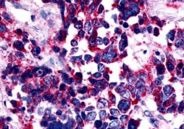 Immunohistochemistry (Formalin/PFA-fixed paraffin-embedded sections) - Anti-Endothelin A Receptor/ET-A antibody - Extracellular domain (ab219358)