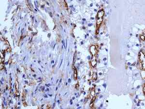 Immunohistochemistry (Formalin/PFA-fixed paraffin-embedded sections) - Anti-CD105 antibody [EPR10145-12] - Low endotoxin, Azide free (ab219362)