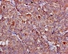 Immunohistochemistry (Formalin/PFA-fixed paraffin-embedded sections) - Anti-FGF21 antibody [EPR8314(2)] - Low endotoxin, Azide free (ab219368)