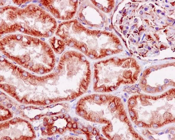 Immunohistochemistry (Formalin/PFA-fixed paraffin-embedded sections) - Anti-LOX antibody [EPR4025] - Low endotoxin, Azide free (ab219369)