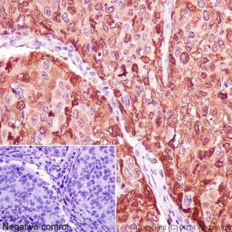 Immunohistochemistry (Formalin/PFA-fixed paraffin-embedded sections) - Anti-MRP8 antibody [EPR3554] - Low endotoxin, Azide free (ab219370)