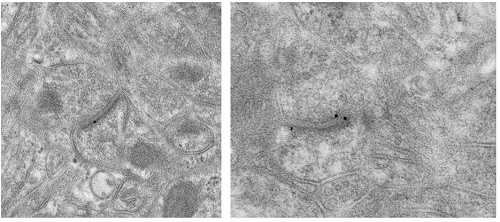 Electron Microscopy - Anti-Metabotropic Glutamate Receptor 5 antibody [EPR2425Y] - Low endotoxin, Azide free (ab219374)