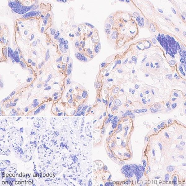Immunohistochemistry (Formalin/PFA-fixed paraffin-embedded sections) - Anti-Laminin 2 alpha antibody [EPR21890] (ab219409)