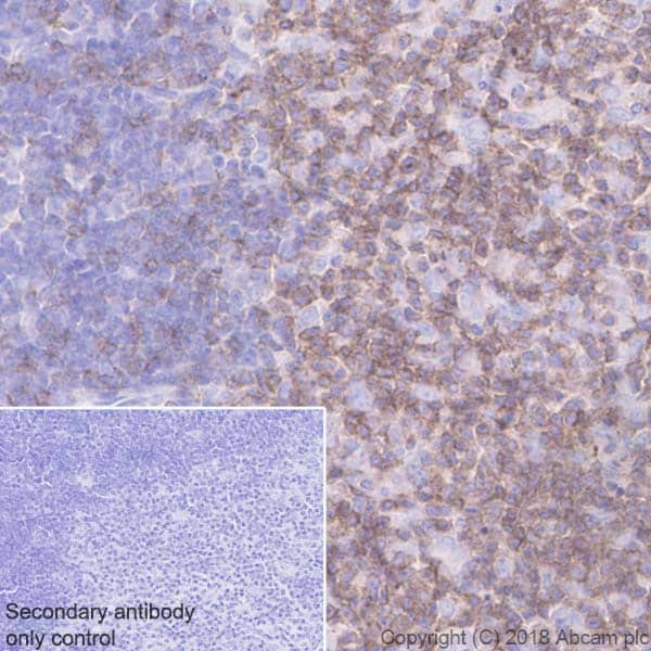 Immunohistochemistry (Formalin/PFA-fixed paraffin-embedded sections) - Anti-CD2 antibody [EPR21825] (ab219411)