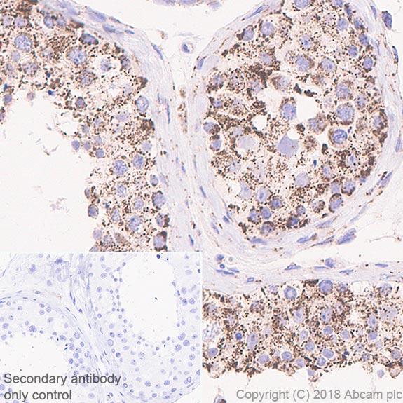 Immunohistochemistry (Formalin/PFA-fixed paraffin-embedded sections) - Anti-Frataxin antibody [EPR21840] (ab219414)