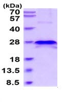 SDS-PAGE - Recombinant Human TIMP4 protein (His tag) (ab219421)