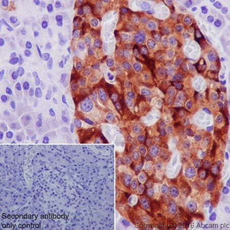 Immunohistochemistry (Formalin/PFA-fixed paraffin-embedded sections) - Anti-TIMP1 antibody [EPR18352] - BSA and Azide free (ab219471)
