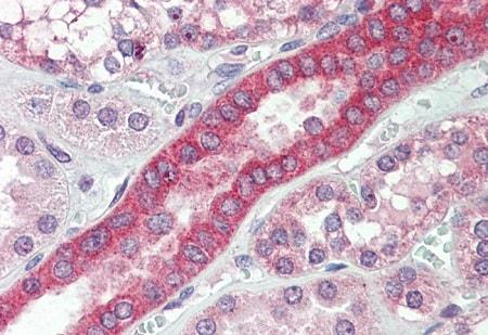 Immunohistochemistry (Formalin/PFA-fixed paraffin-embedded sections) - Anti-MYO1H antibody - C-terminal (ab219505)