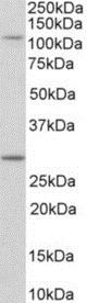 Western blot - Anti-MYO1H antibody - C-terminal (ab219505)