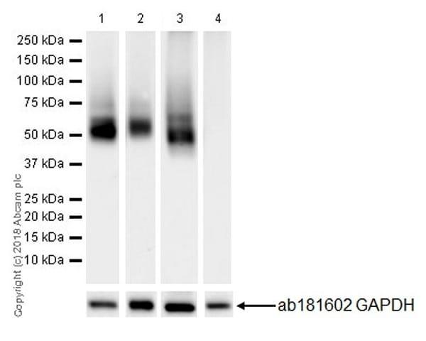 Western blot - Anti-LYVE1 antibody [EPR21857] (ab219556)