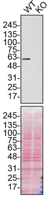Western blot - Anti-SQSTM1 / p62 antibody [EPR4844] - BSA and Azide free (ab219581)