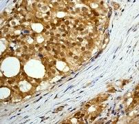 Immunohistochemistry (Formalin/PFA-fixed paraffin-embedded sections) - Anti-AKT3 + AKT2 + AKT1 antibody [Y89] - BSA and Azide free (ab219588)