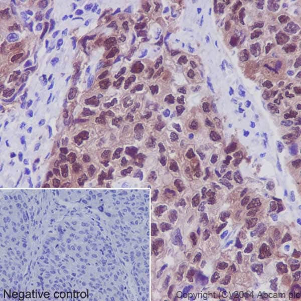 Immunohistochemistry (Formalin/PFA-fixed paraffin-embedded sections) - Anti-Hsp70 antibody [EPR16892] - BSA and Azide free (ab219597)