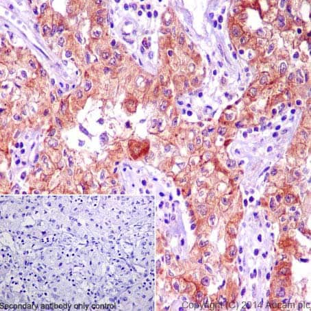 Immunohistochemistry (Formalin/PFA-fixed paraffin-embedded sections) - Anti-BNIP3 antibody [EPR4034] - BSA and Azide free (ab219609)