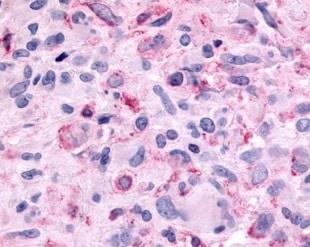 Immunohistochemistry (Formalin/PFA-fixed paraffin-embedded sections) - Anti-Melatonin Receptor 1B/MTNR1B antibody - Extracellular domain (ab219615)