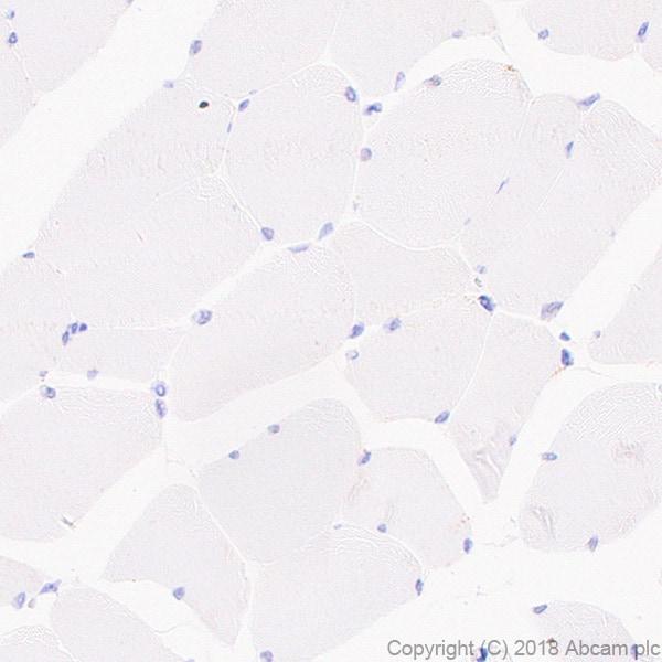 Immunohistochemistry (Formalin/PFA-fixed paraffin-embedded sections) - Anti-MMP13 antibody [EPR21778] (ab219620)