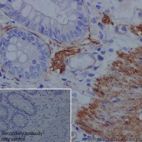 Immunohistochemistry (Formalin/PFA-fixed paraffin-embedded sections) - Anti-Vinculin antibody [EPR20407] (ab219649)