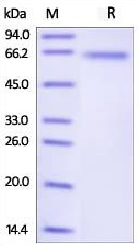 SDS-PAGE - Recombinant Human DLL4 protein (His tag) (ab219667)