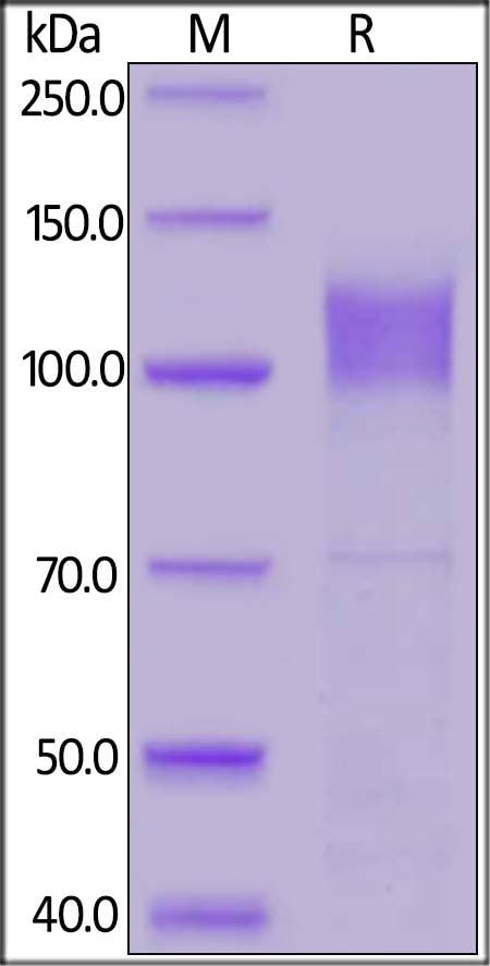 SDS-PAGE - Recombinant Human Interferon alpha/beta receptor 1 protein (Fc Chimera) (ab219671)