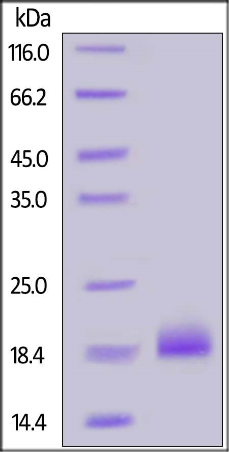 SDS-PAGE - Recombinant Human Ephrin A4 protein (His tag) (ab219683)
