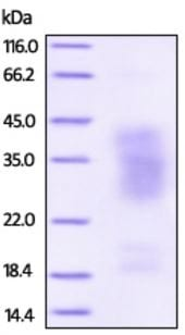 SDS-PAGE - Recombinant Human TNFRSF14/HVEM protein (Strep-tag) (ab219700)