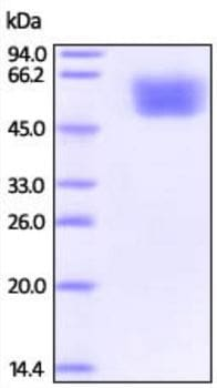 SDS-PAGE - Recombinant Rhesus monkey DDR2 protein (Active) (ab219702)