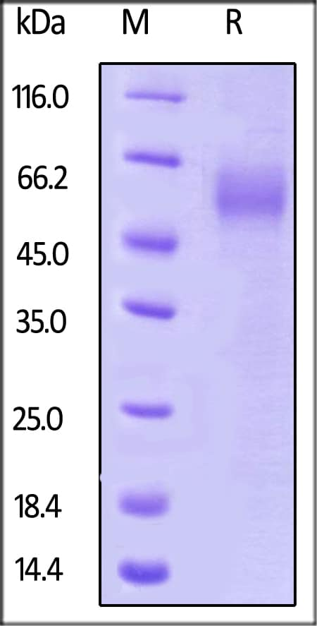 SDS-PAGE - Recombinant Human ST2 protein (His tag) (ab219706)